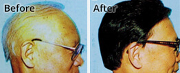 Get Personalised Treatment For Every Androgenetic Alopecia