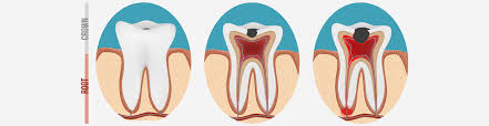 Best Root Canal Treatment in Melbourne
